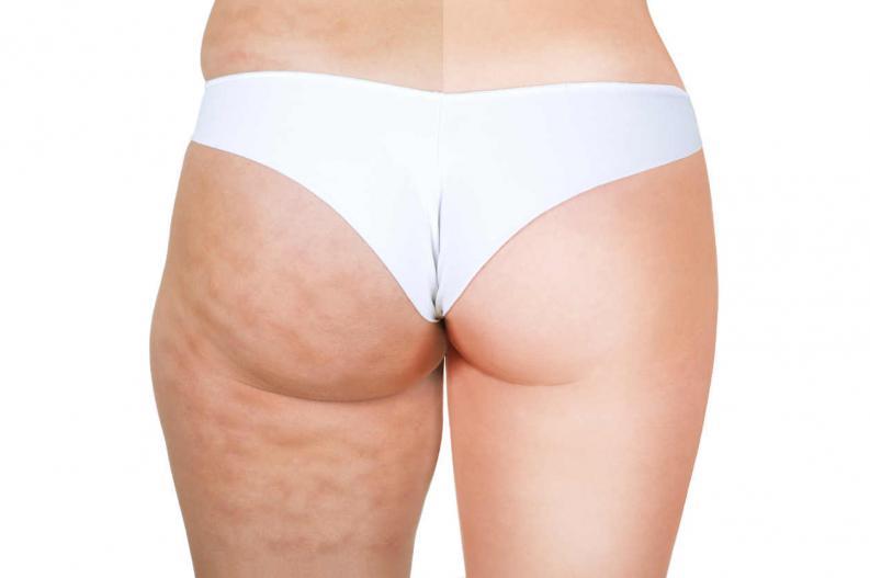 Trasero de mujer con braga blanca enseñando celulitis